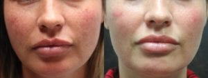 IPL Treatment Before and After Photo - Patient 4A