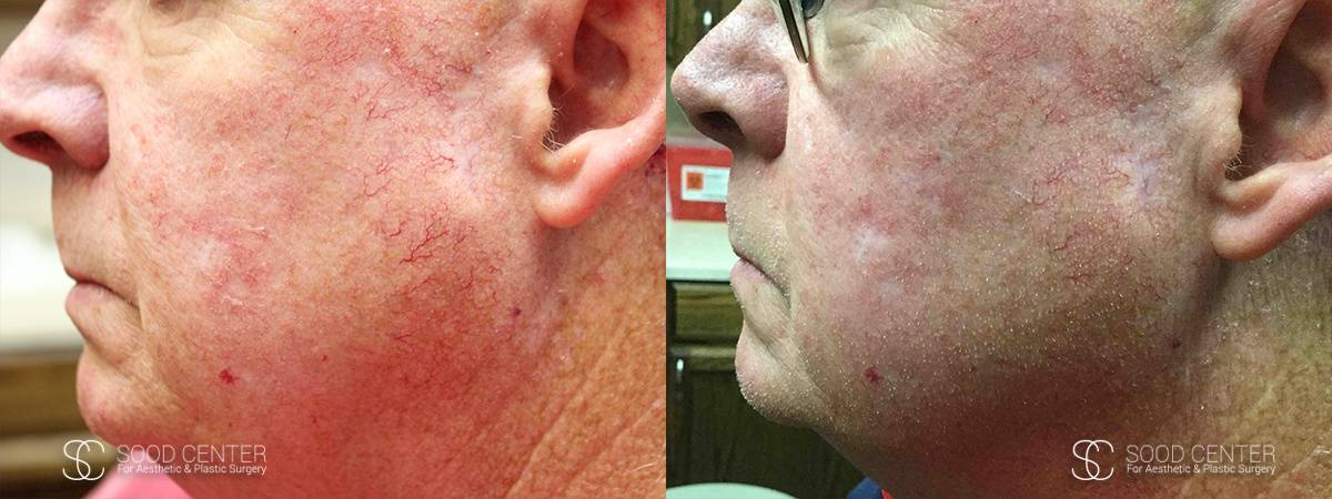 IPL Treatment Before and After Photo - Patient 5A