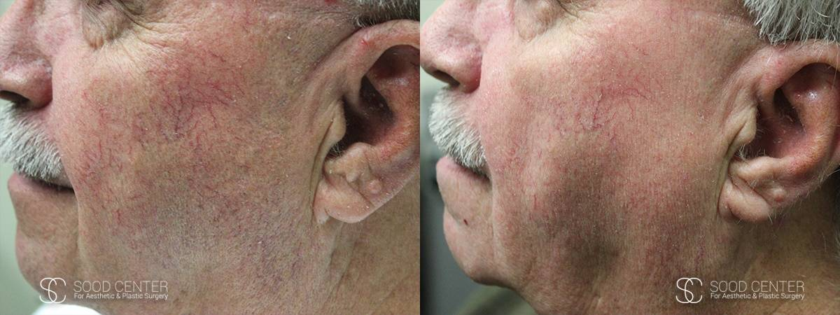 IPL Treatment Before and After Photo - Patient 6A