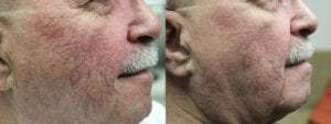 IPL Treatment Before and After Photo - Patient 6B