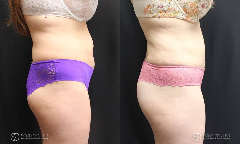 Liposuction Before and After Photos - Patient 1