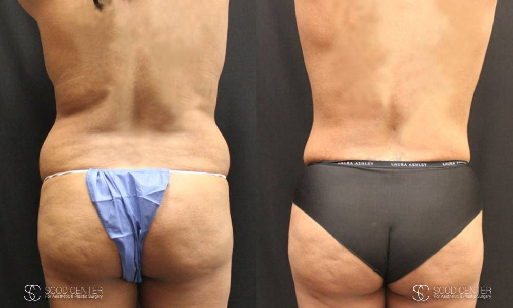 Liposuction Before and After Photos - Patient 2