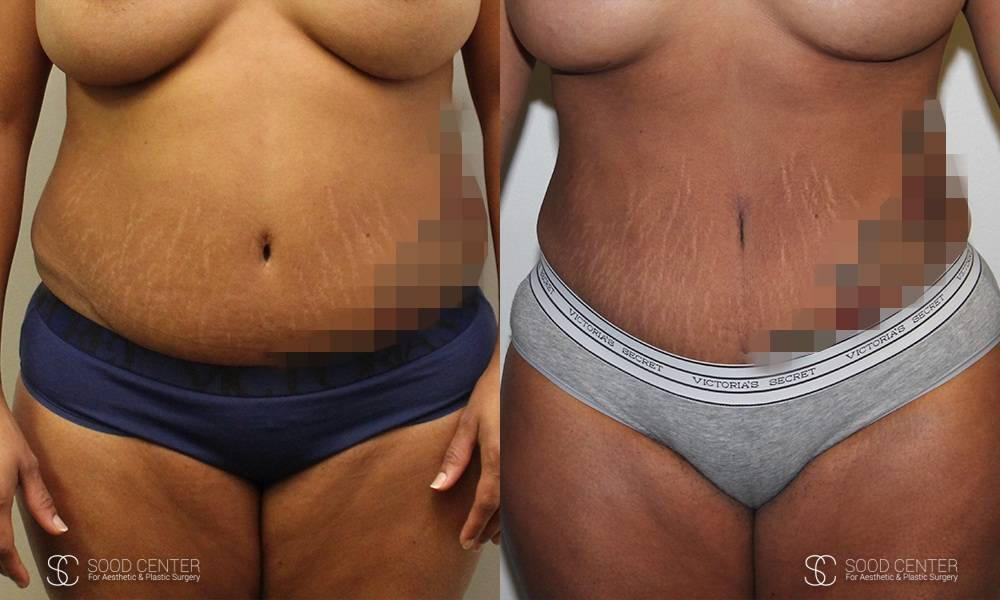 Liposuction Before and After Photos - Patient 3B