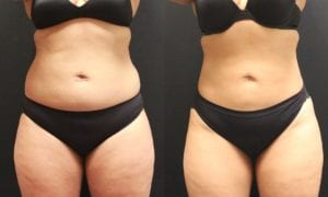 Liposuction Before and After Photos - Patient 4A