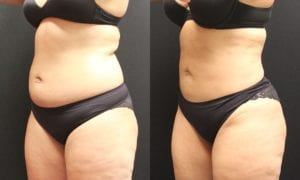Liposuction Before and After Photos - Patient 4B