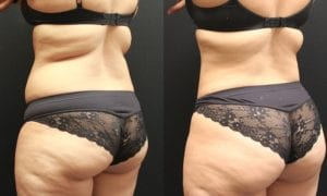 Liposuction Before and After Photos - Patient 4D