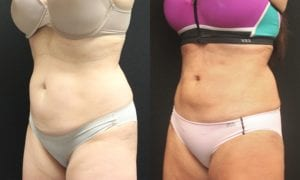 Liposuction Before and After Photos - Patient 5B