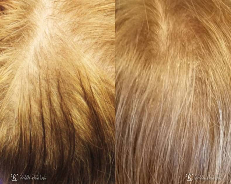 PRP Treatment Before and After Photos - Patient 1