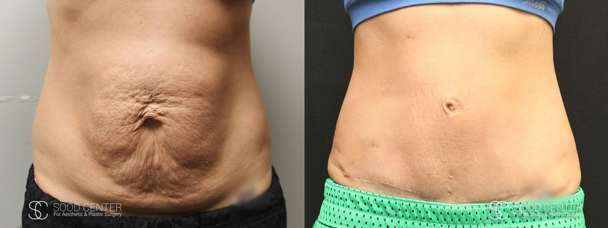 Tummy Tuck Before and After Photos - Patient 8A