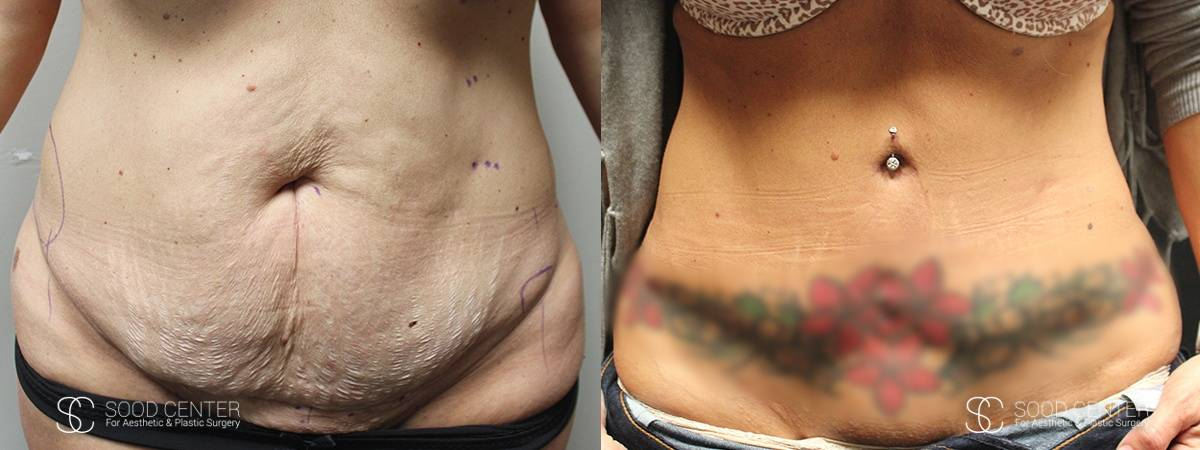 Tummy Tuck Before and After Photos - Patient 9