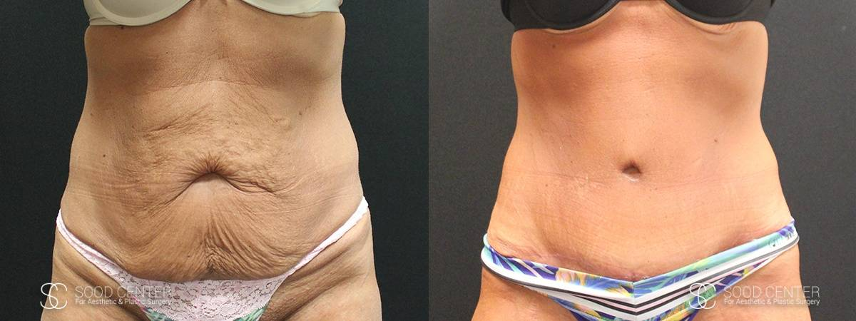 Tummy Tuck Before and After Photos - Patient 11A
