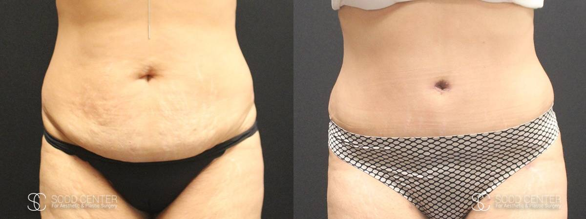 Tummy Tuck Before and After Photos - Patient 12A
