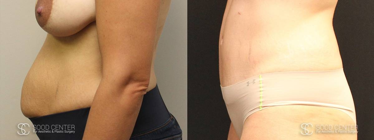 Tummy Tuck Before and After Photos - Patient 14A