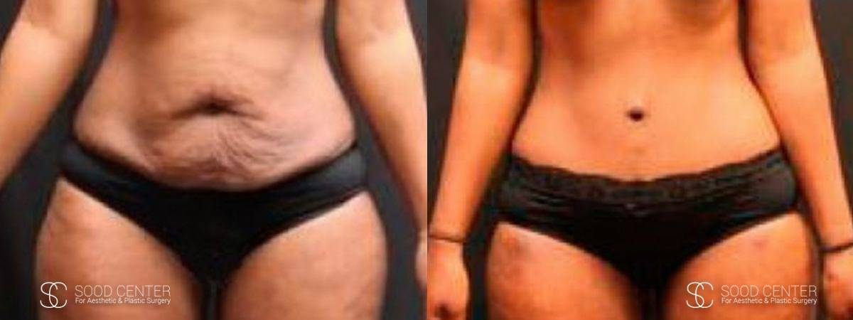 Tummy Tuck Before and After Photos - Patient 16