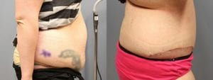 Tummy Tuck Before and After Photos - Patient 1A