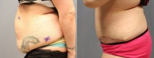 Tummy Tuck Before and After Photos - Patient 1B