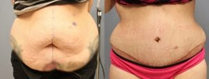 Tummy Tuck Before and After Photos - Patient 1C