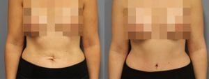 Tummy Tuck Before and After Photos - Patient 2C