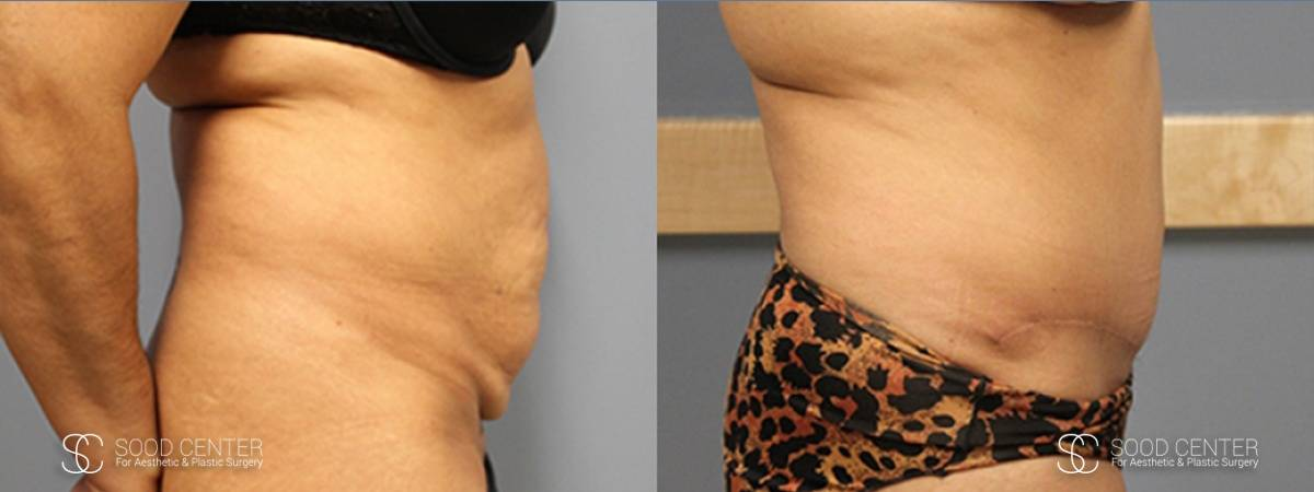 Tummy Tuck Before and After Photos - Patient 4A