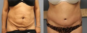 Tummy Tuck Before and After Photos - Patient 4B