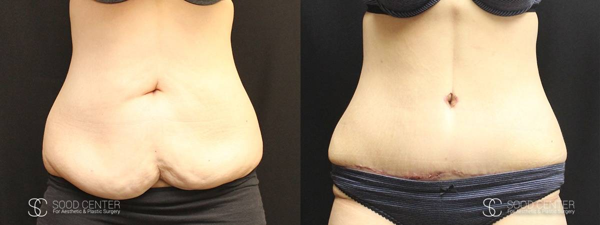 Tummy Tuck Before and After Photos - Patient 5A