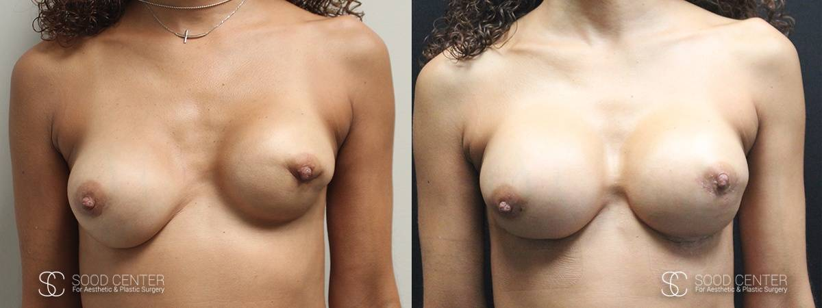 Breast Revision Before and After Photo - Patient 1