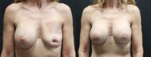 Breast Revision Before and After Photo - Patient 2A