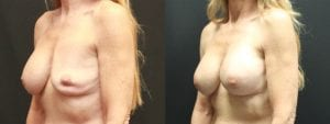 Breast Revision Before and After Photo - Patient 2B