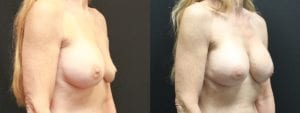 Breast Revision Before and After Photo - Patient 2C