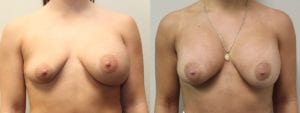 Breast Revision Before and After Photo - Patient 3A
