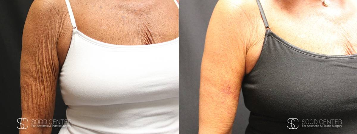 Arm Lift Before and After Photo - Patient 1