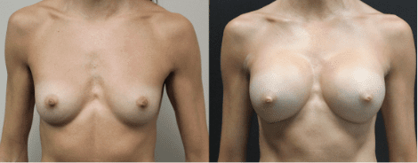 Breast Augmentation Before & After Gallery Section Photo