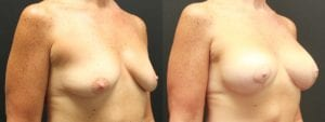 Breast Augmentation with Lift Before and After Photo - Patient 1B