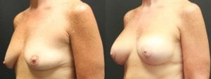 Breast Augmentation with Lift Before and After Photo - Patient 1C