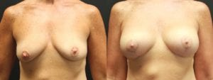 Breast Augmentation with Lift Before and After Photo - Patient 1A