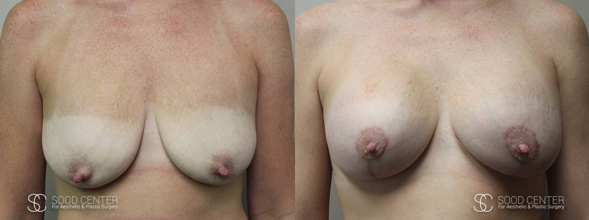 Breast Augmentation with Lift Before and After Photo - Patient 2A