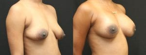Breast Augmentation with Lift Before and After Photo - Patient 3B