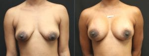 Breast Augmentation with Lift Before and After Photo - Patient 3A