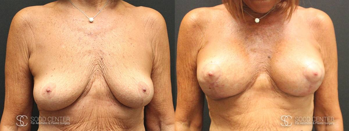 Breast Augmentation with Lift Before and After Photo - Patient 4A