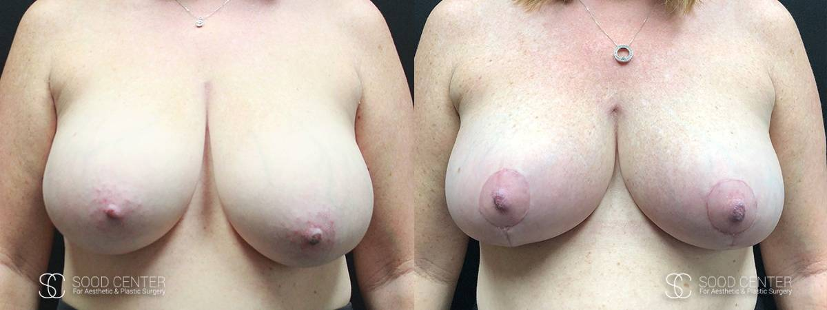 Breast Reduction Before and After Photos - Patient 1A