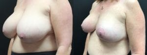 Breast Reduction Before and After Photos - Patient 1B