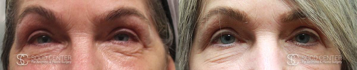 CO2 Laser Resurfacing Before and After Photo - Patient 1