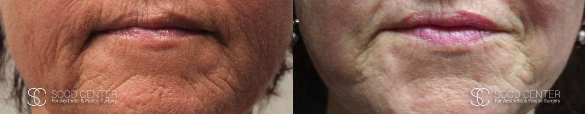 CO2 Laser Resurfacing Before and After Photo - Patient 2