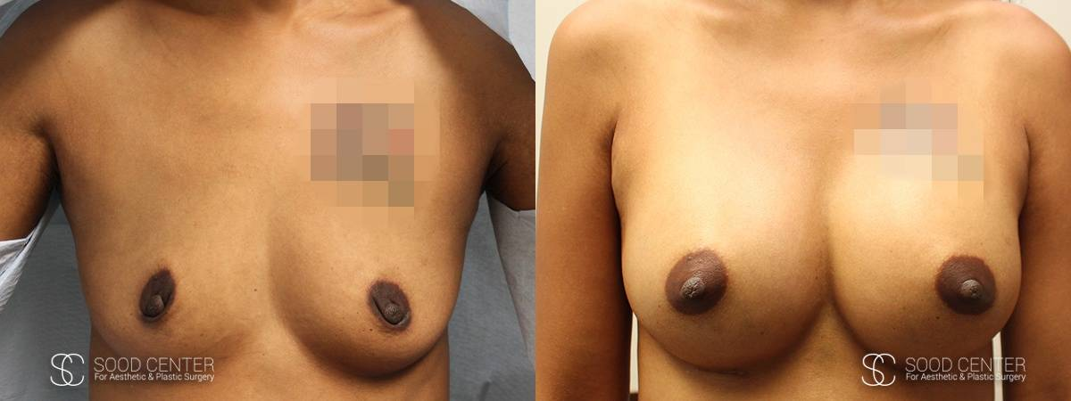 Dual-Plane Breast Augmentation Before and After Photo - Patient 1