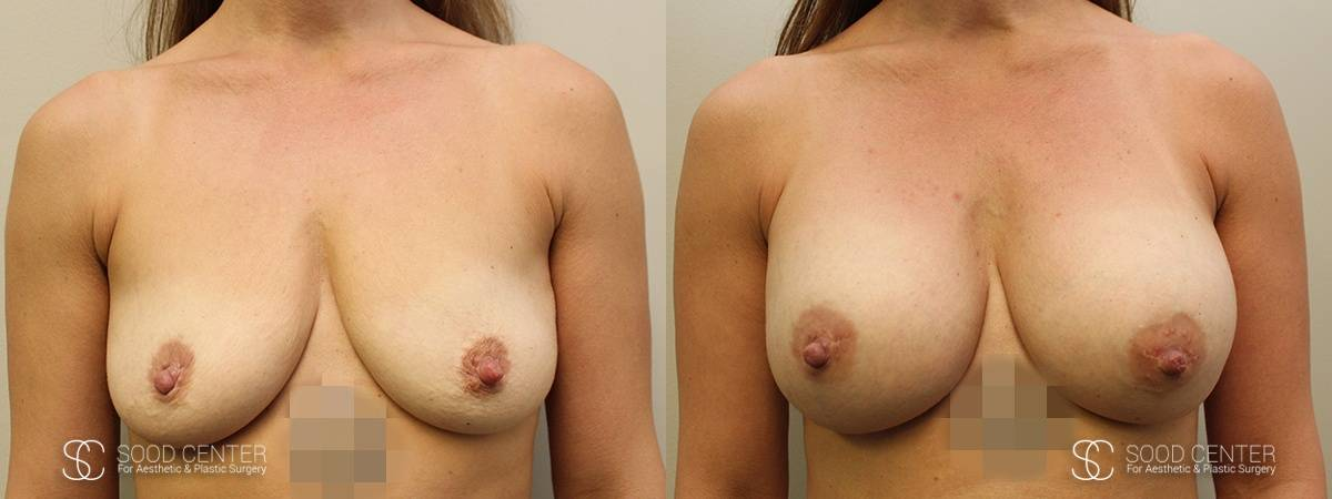 Dual-Plane Breast Augmentation Before and After Photo - Patient 2