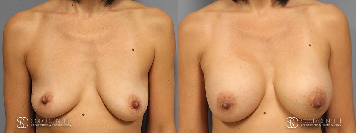Dual-Plane Breast Augmentation Before and After Photo - Patient 3A