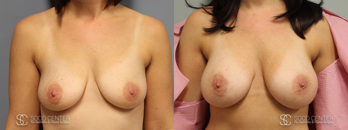 Dual-Plane Breast Augmentation Before and After Photo - Patient 4