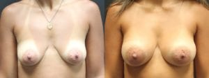 Dual-Plane Breast Augmentation Before and After Photo - Patient 5A