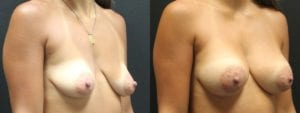 Dual-Plane Breast Augmentation Before and After Photo - Patient 5B