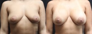 Dual-Plane Breast Augmentation Before and After Photo - Patient 6A